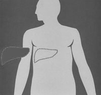 Conference artwork, a human figure from the waist up, showing a liver outside of the body and the outline of where the liver exists inside the body.