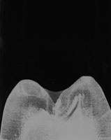 Conference artowrk, x-ray of a large tooth against a black background.