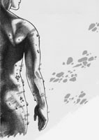 Conference artwork, human figure showing fibromas on the torso and arms.