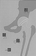 Conference artwork depicting an figue of a a hip replacement with small icons of people doing activities (biking, swimming, etc.) around the periphery.